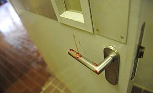 Darah yang tertinggal di gagang pintu tempat David menyerang Prof Chan Kap Luk, Senin ( 2/3/2009 ).