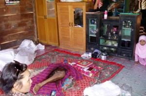 TRIBUN KALTIM/DOHANG Kaki kiri milik Beddu (55), pria yang menjadi santapan buaya di Sugai Santan, Kutai Kartanegara, Kamis (11/2/2010).